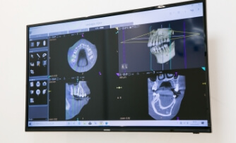歯科用CTの診断による精密な治療